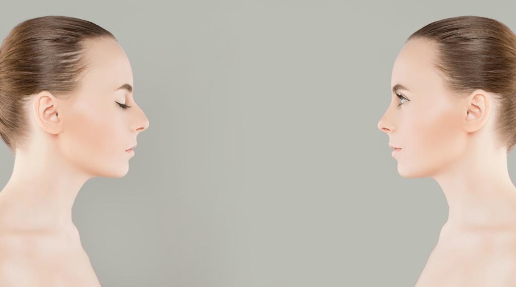 Filler full face: corso teorico e pratico alla Medfarmitalia